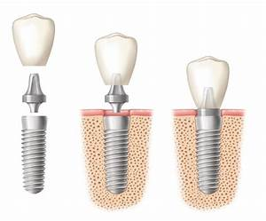 Dental Implant Ho Chi Minh City