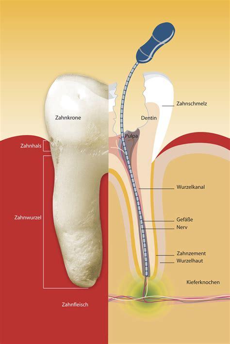 wurzelkanalbehandlung zahnarztpraxis