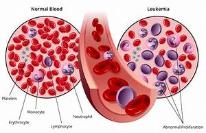 Researchers Explore Possible Link Between Cmv And Acute Lymphocytic Leukemia   U201call U201d   U2013 Vbi