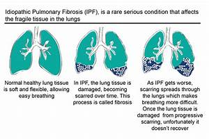 4  What Is Idiopathic Pulmonary Fibrosis  Ipf    Ud83d Udce2  U2014 Eu