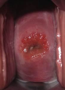 Vaginal Discharge - Pictures