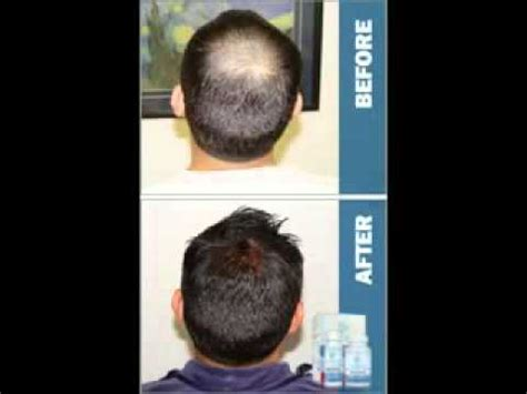 Rogaine Before and After - YouTube