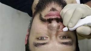 Acne Scarring Treament Using Plexr