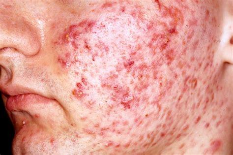 Acne Vulgaris - Pictures, Definition, Symptoms, Causes