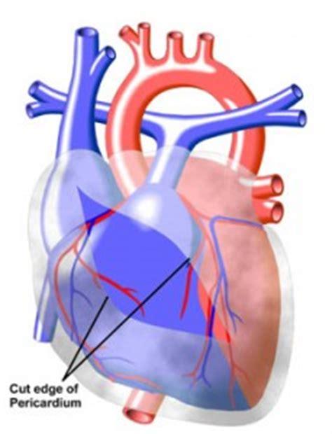 harttamponade