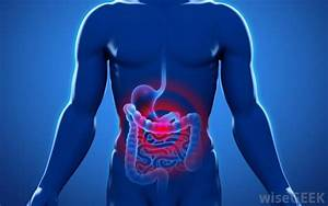 What Are The Symptoms Of Diverticulitis   With Pictures