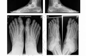 A  Lateral Radiograph Of Maceira Grade 3 Mwd  Left Foot