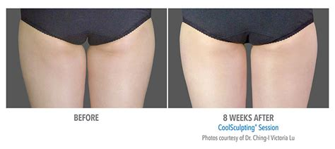 CoolSculpting Inner & Outer Thighs Before & After Photos
