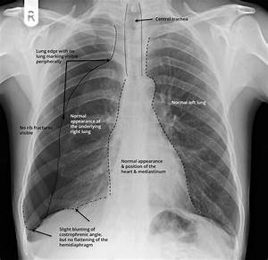 Annotated X- Ray