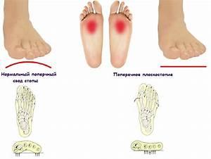 Плоскостопие и артроз лечение
