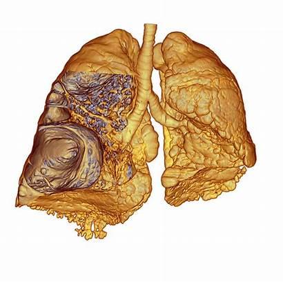 Emphysema Lungs Scan Ct Medical Imaging Cane