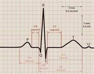 Normal ECG Waves Labeled