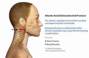 posterior pelvic pain relief