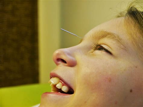 20 Treating Children With Acupuncture In Guildford Surrey
