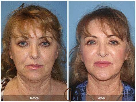 fat grafting orange county top plastic surgeon