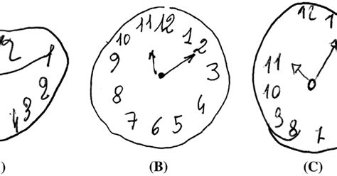 clock drawing test jan interactive the clock drawing test and dementia