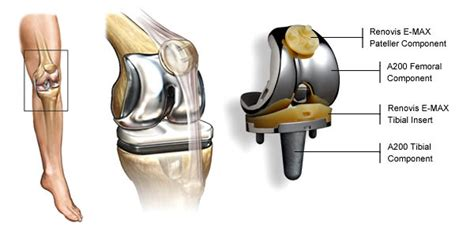 Total Knee Replacement Surgery, Cost, Procedure, Types