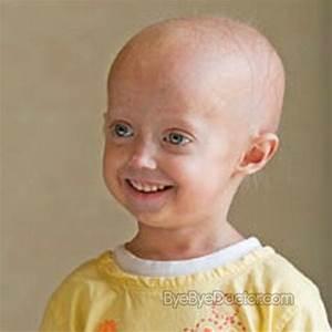 Progeria – Pictures, Symptoms, Causes, Treatment, Diagnosis