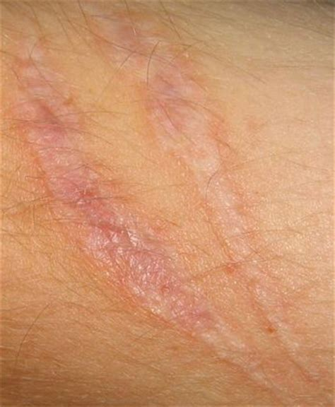 scars trauma  surgical scarring advanced dermatology