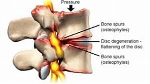 Discopathie: Is mijn rugpijn te verklaren door slijtage van