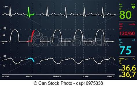 Drawings Of Icu Monitor  Image Of Schematic Intensive. Downs Signs. Procedure Signs Of Stroke. School Zone Signs Of Stroke. November 12 Signs Of Stroke. Yard Signs. Cue Signs. Sign Painter Signs Of Stroke. Genogram Signs