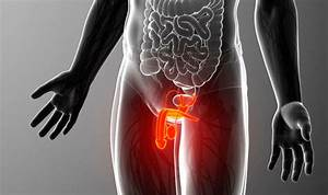 Cancer Symptoms  A Bent Penis Could A Sign Of Condition