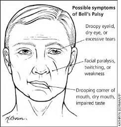 Cranial Nerve #7: Bell's Palsy 12 Cranial Nerves