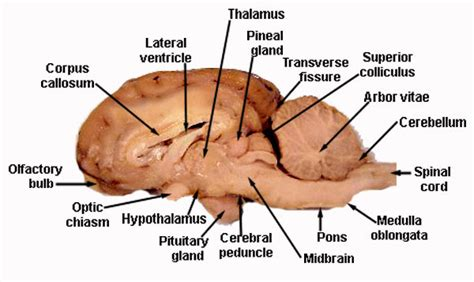 sheep brain anatomy diagram s vet student info quot if a soul means being