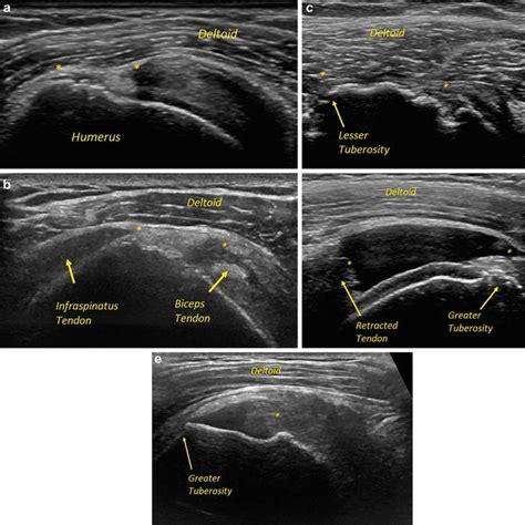 Ultrasound in Rotator Cuff Evaluation   Musculoskeletal Key