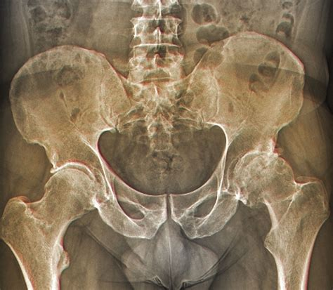 Causes Symptoms And Treatment Of Hip Osteoarthritis