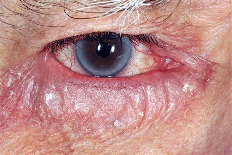 allergic eye disease  bmj