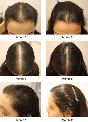 Male Pattern Baldness Female Pattern Baldness Thinning