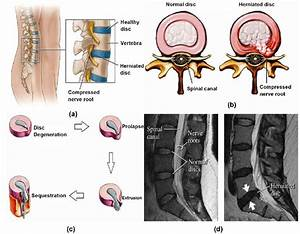 Lumbar Disc Herniation  A  Showing Herniated Disc At L4  L5