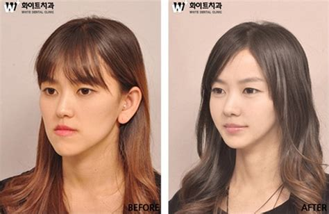 Korean Plastic Surgery Meme - jessica nigri before and after memes