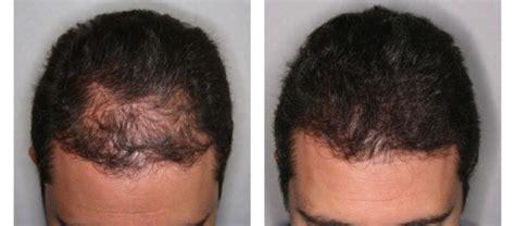 Hair Loss treatment reviews | Before& after hair loss