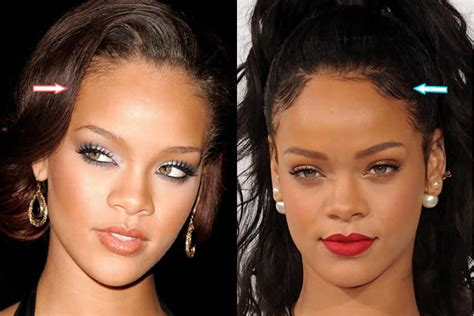 Has Rihanna Had Plastic Surgery? (before & After Photos 2018