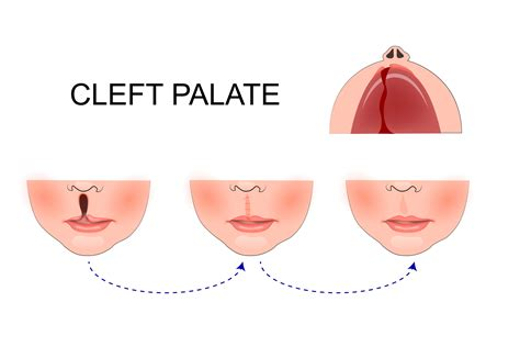 The Gallery For Cleft Palate Anatomy