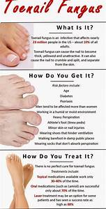 How to Get Rid of Toenail Fungus | Top Ways to Get Rid of ...