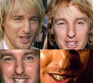 Owen Wilson nose job Archives - Celebrity Weight Loss and