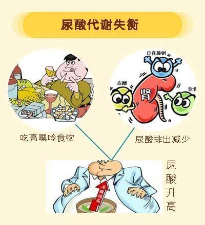 高 尿酸 血 症