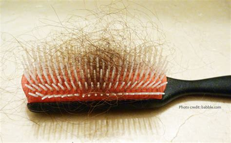 hair shedding or hair loss learn about common conditions that cause hair loss and how