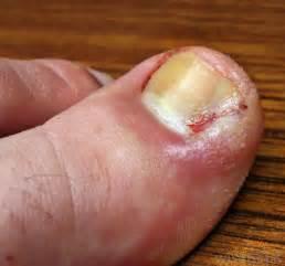 melanoma under toenail big toe