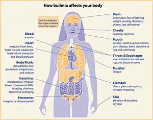 Anorexic Heroin Chic: Bulimia Nervosa . Signs, Symptoms ...