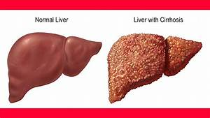 Cirrhosis Of The Liver Natural Treatment | Liver Cirrhosis ...