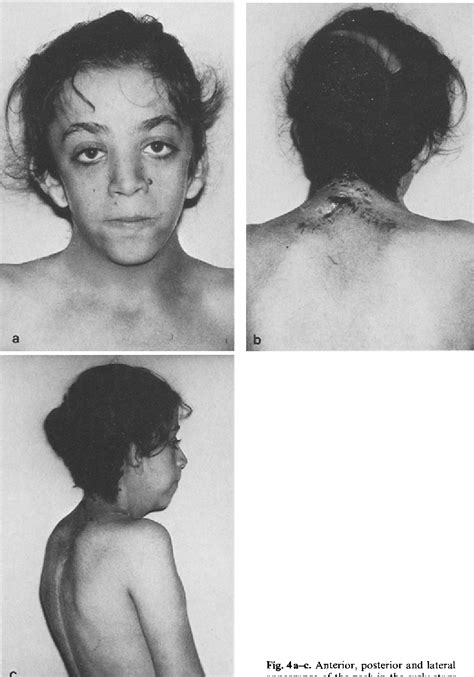 Figure 4 from Correction of webbed-neck deformity in