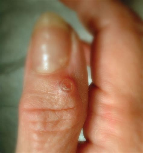Treatment Of Finger Cysts At Raleigh Hand Center Raleigh