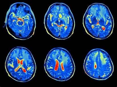 Brain Imaging Biobank Mri Scan Cohort