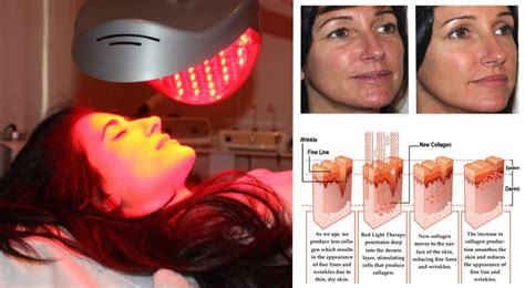 red light therapy benefits your blog 5 gigantic influences of probiotic supplement