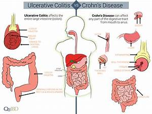 Differences Between Crohn U0026 39 S And Colitis