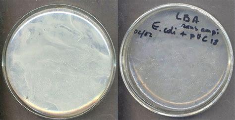 transgenese bacterienne